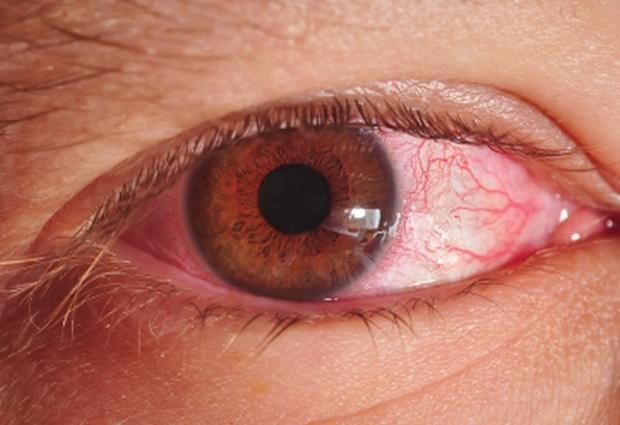 Обнаружен в глазах хламидиоз? Лечение необходимо срочно!