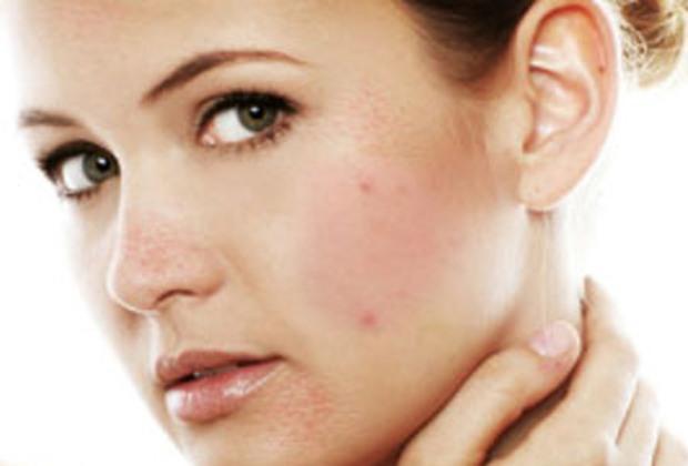 Распространенные кожные болезни. Псориаз - это навсегда