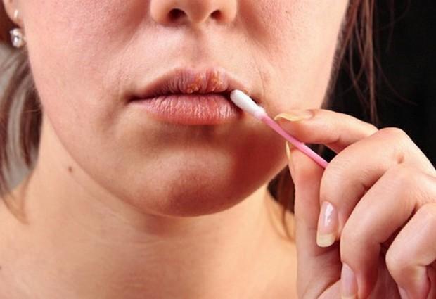 Как вылечить герпес на губе?