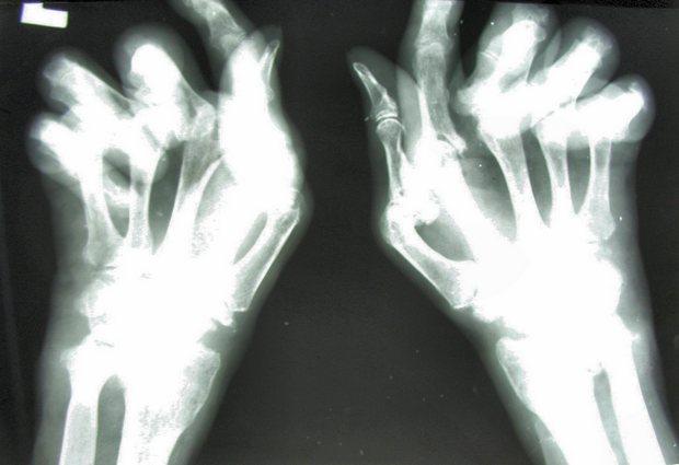 Артриты Причины, и. суставов) - симптомы (воспаление