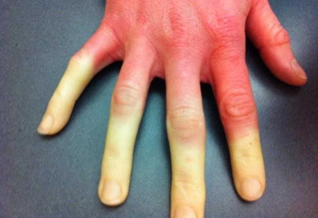 Покалывание пальцев рук: туннельный и кубитальный синдром