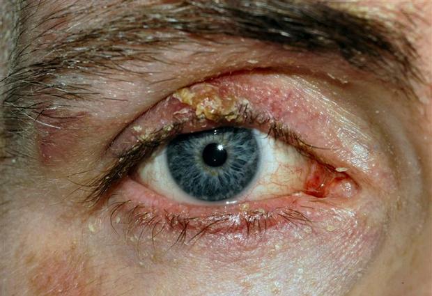 Блефарит: причины, симптомы, типы
