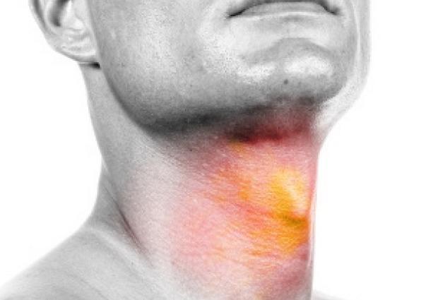 Рак горла: симптомы «болезни курильщиков»