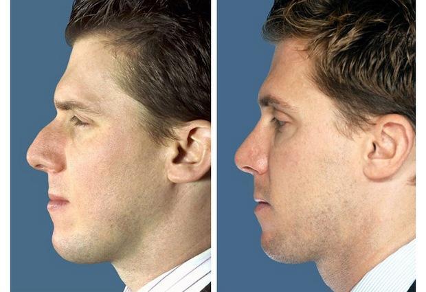Пластическая операция на носу – готовимся правильно!