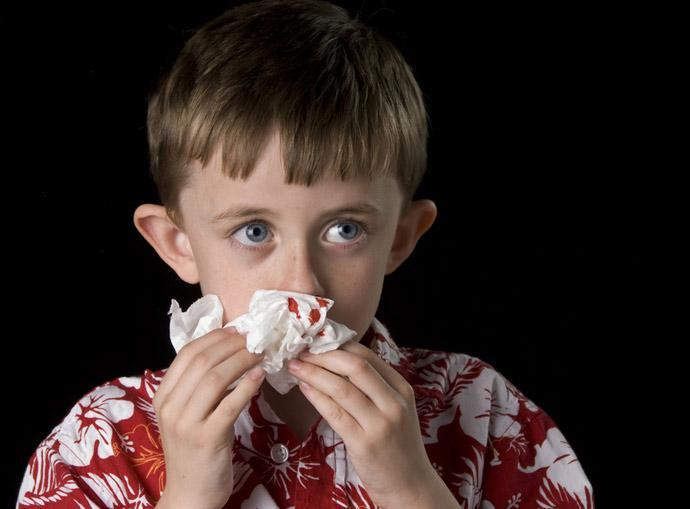 Носовое кровотечение у детей: причины, первая помощь