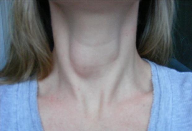 Воспалительный и невоспалительный отек гортани: причины, симптомы, лечение