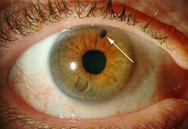 Глаукома: общие понятия, причины, симптомы