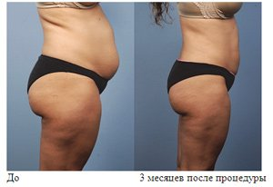 Радиочастотная липосакция - современная технология против лишнего веса!