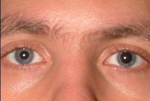 Анизокория