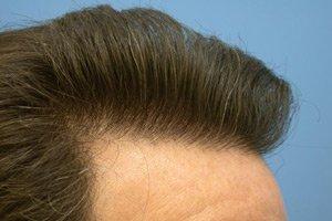 Операция по пересадке волос
