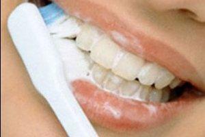 Лечение зубного флюса