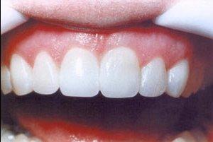Почему изнашиваются коронки зубные?