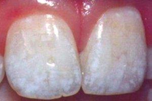 Проявления флюороза и его лечение