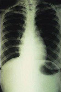 Рак легких: симптомы, лечение - Равное право на жизнь