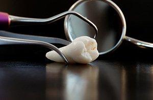 Как подрезают капюшон на зубе мудрости