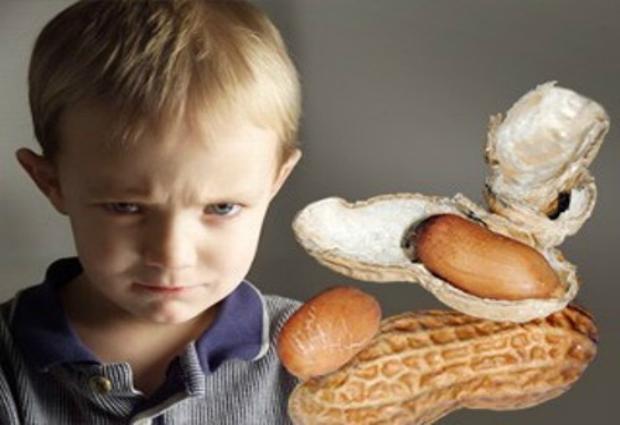 Ученые доказали, что жизнь в больших городах делает детей аллергиками