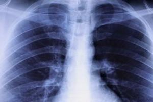 Пациенты смогут дышать без легких