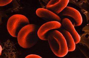 Лучевая терапия провоцирует развитие воспалений
