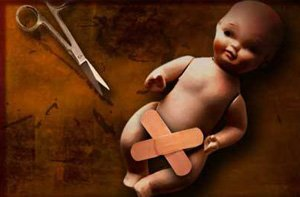 Обрезание отрицательно сказывается на мужской потенции