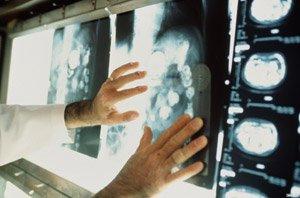 Разрушение ДНК человека является причиной старения